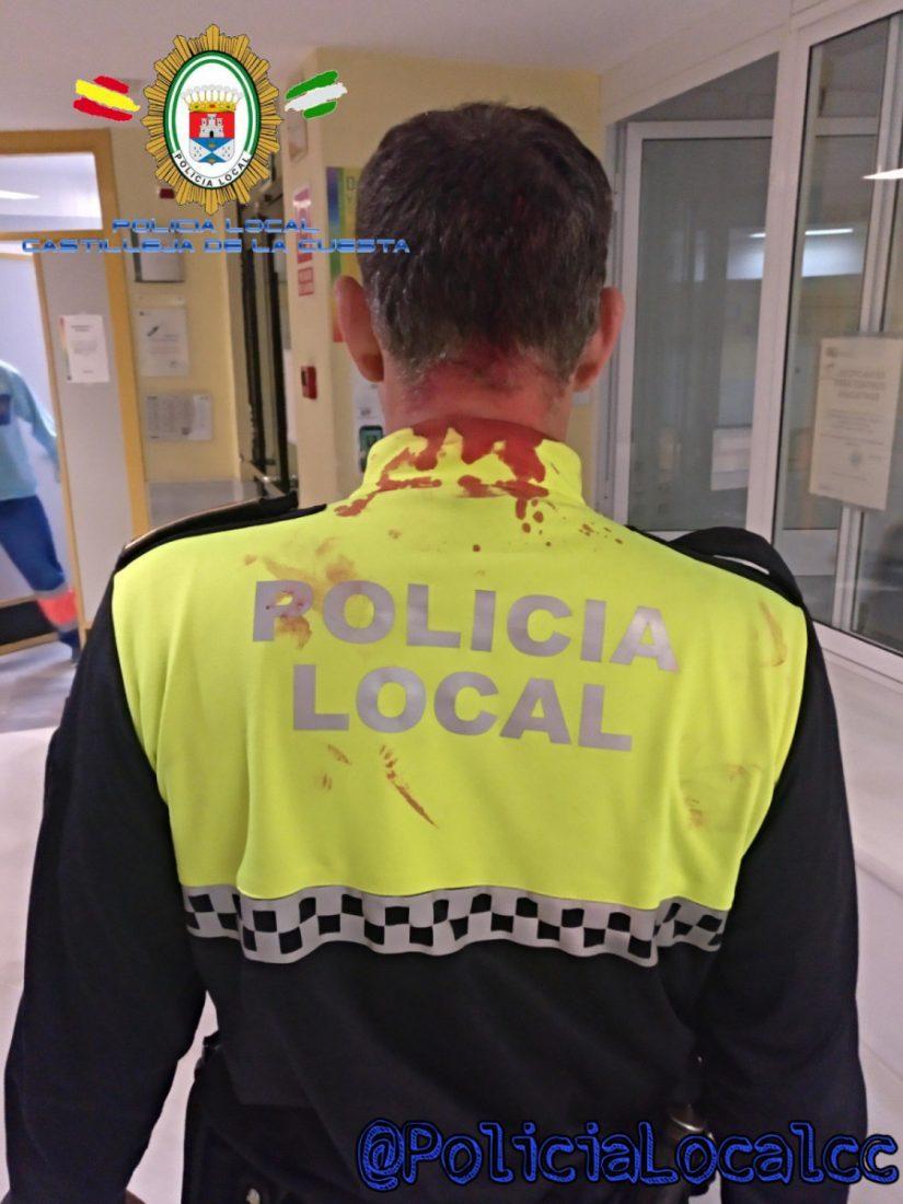 AionSur: Noticias de Sevilla, sus Comarcas y Andalucía poli-sangre Un detenido golpea salvajemente a un policía de Castilleja de la Cuesta Sucesos destacado