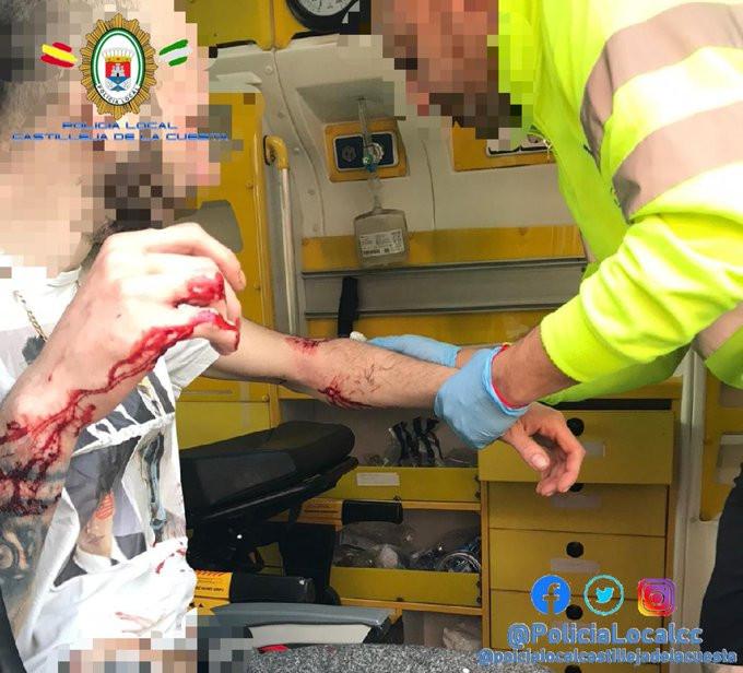 AionSur perro-castilleja Un perro peligroso ataca a sus dueños y les provoca heridas graves en Castilleja de la Cuesta Castilleja de la Cuesta Sucesos
