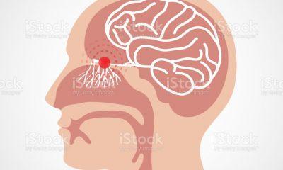 AionSur hiposmia-400x240 Mi vida en positivo (Capítulo 1 - Anosmia) - 14 días de vida confinada de un positivo de COVID Coronavirus destacado